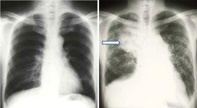 肺がん 末期 症状 肺がん末期 元気で長生きのためにこれだけは知っておくべきこと